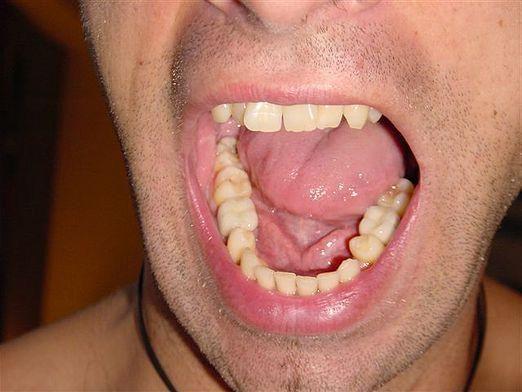 Як називаються зуби?