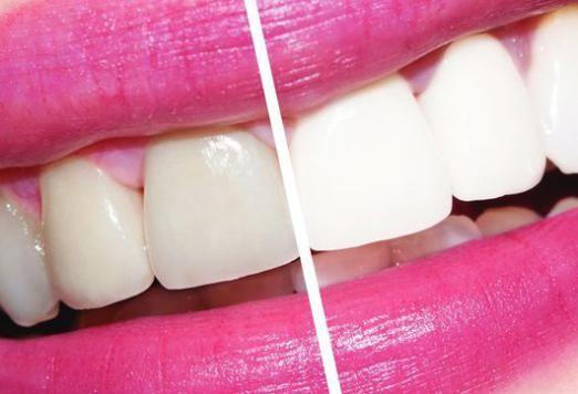 Як відбілити зуби без шкоди?