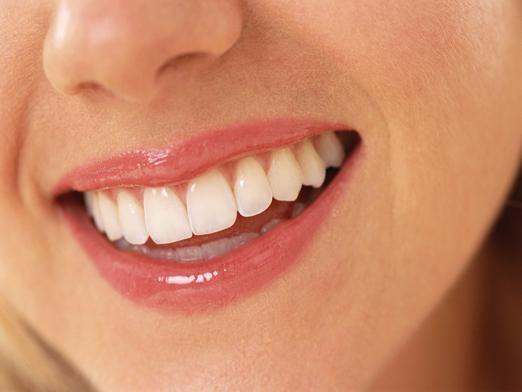 Як відбілити зуби перекисом?
