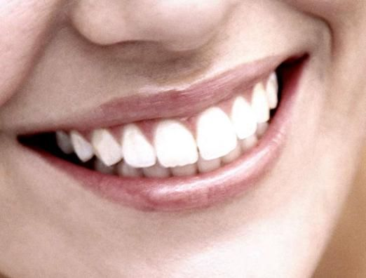 Як зміцнити зуби?
