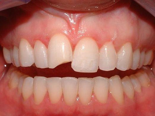 Як відновити зуб?