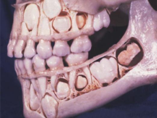 Як виглядає прорізування зубів?